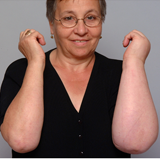 Image of a woman shows off her right arm compared to her left arm that is swollen because of lymphedema